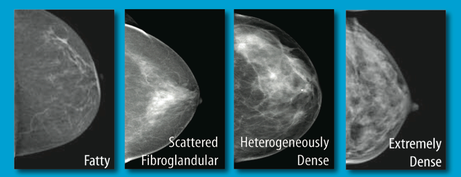 what is breast density | Orange County, California